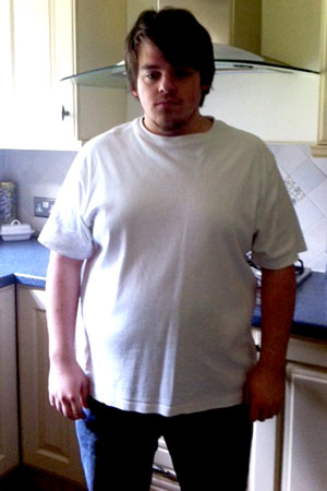 Gastric band hypnosis in Essex- before therapy